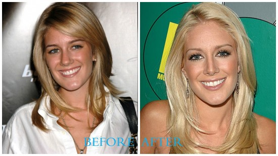 Heidi Montag 550x309 Heidi Montag Plastic Surgery Before and After
