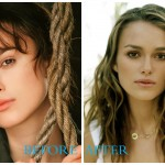 Keira Knightley 1 150x150 Keira Knightley Plastic Surgery Before and After