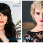 Rumer Willis 1 150x150 Suzanne Somers plastic surgery