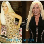 Donatella Versace 1 150x150 Donatella Versace Plastic Surgery Before and After Photos