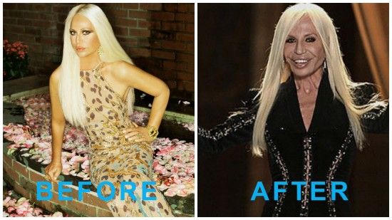 Donatella Versace 550x309 Donatella Versace Plastic Surgery Before and After Photos