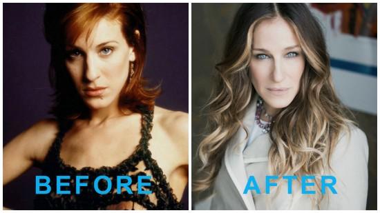 Sarah Jessica Parker 550x309 Sarah Jessica Parker Plastic Surgery, Before and After Photos