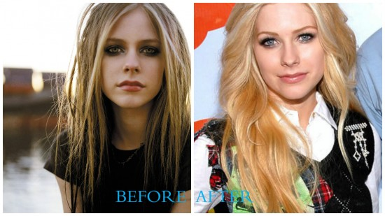 Avril Lavigne 550x309 Avril Lavigne Plastic Surgery