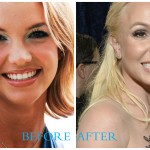 Britney Spears Plastic Surgery (Before and After photos)