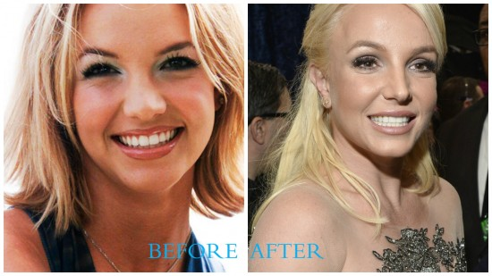 Britney Spears 550x309 Britney Spears Plastic Surgery (Before and After photos)