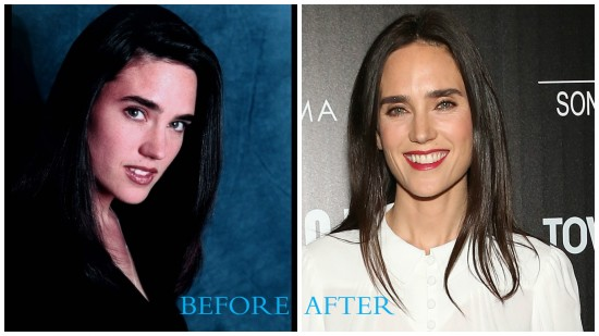 Jennifer Connelly 550x309 Jennifer Connelly Plastic Surgery (Before and After pics)