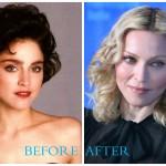 Madonna 150x150 Madonna Plastic Surgery