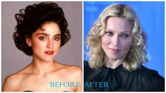 Madonna 550x309 Madonna Plastic Surgery