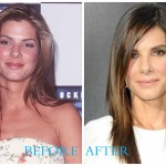 Sandra Bullock 150x150 Jennifer Connelly Plastic Surgery (Before and After pics)