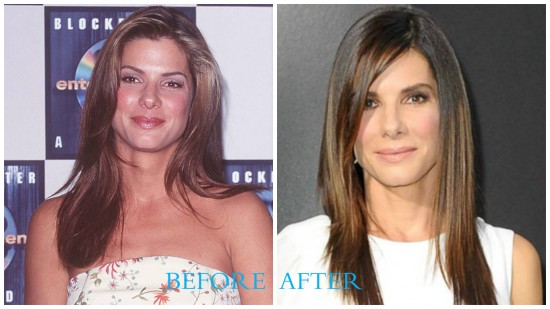 Sandra Bullock 550x309 Sandra Bullock Plastic Surgery Before and After