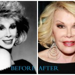 Joan Rivers Plastic Surgery Before and After