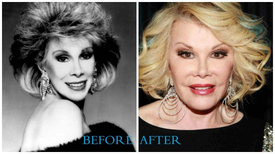 Joan Rivers 550x309 Joan Rivers Plastic Surgery Before and After