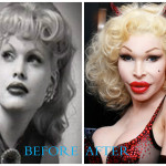 Amanda Lepore 150x150 Amanda Lepore plastic surgery