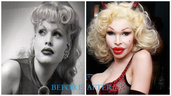 Amanda Lepore 550x309 Amanda Lepore plastic surgery