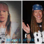 Axl Rose 150x150 Axl Rose plastic surgery Before and After