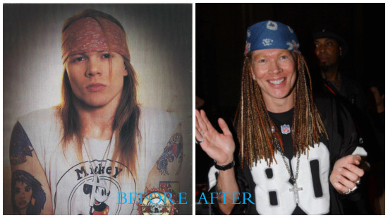 Axl Rose 550x309 Axl Rose plastic surgery Before and After