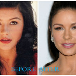 Catherine Zeta-Jones plastic surgery pics (before/after)