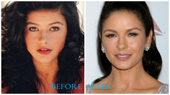 Catherine Zeta  Jones 550x309 Catherine Zeta Jones plastic surgery pics (before/after)