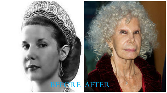 Duchess of Alba 550x309 Duchess of Alba plastic surgery