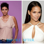 Hallie Berry 150x150 Halle Berry plastic surgery photos (before and after)