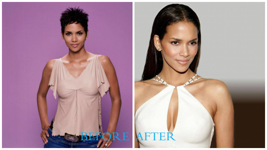 Hallie Berry 550x309 Halle Berry plastic surgery photos (before and after)