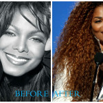 Janet Jackson plastic surgery (before/after pics)