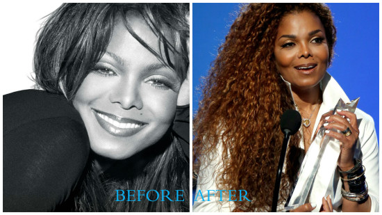 Janet Jackson 550x309 Janet Jackson plastic surgery (before/after pics)
