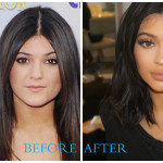 Kylie Jenner 150x150 Pamela Anderson plastic surgery (Before and After pics)