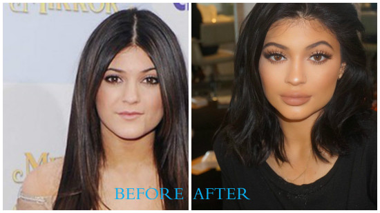 Kylie Jenner 550x309 Kylie Jenner plastic surgery pictures (before/after)