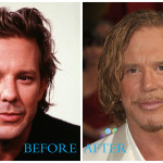 Mickey Rourke plastic surgery pictures (before and after)