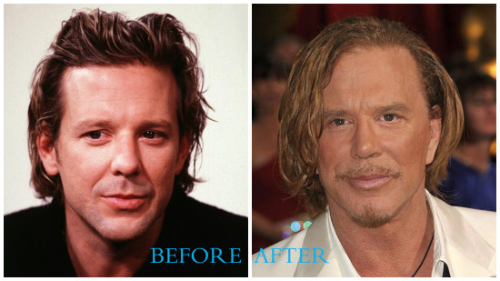 Mickey Rourke 550x309 Mickey Rourke plastic surgery pictures (before and after)