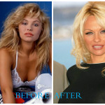 Pamela Anderson 150x150 Pamela Anderson plastic surgery (Before and After pics)