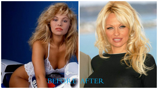 Pamela Anderson 550x309 Pamela Anderson plastic surgery (Before and After pics)