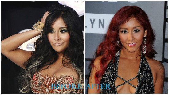 Snooki 550x309 Snooki plastic surgery photos (before and after)