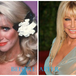 Suzanne Somers 150x150 Suzanne Somers plastic surgery