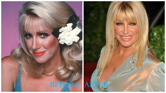 Suzanne Somers 550x309 Suzanne Somers plastic surgery