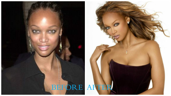 Tyra Banks 550x309 Tyra Banks plastic surgery